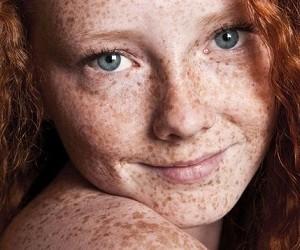 Ученые рассказали, как цвет волос влияет на развитие рака кожи