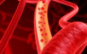 Уровень холестерина влияет на вероятность развития рака груди