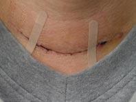 Большинству пациентов с опухолями щитовидной железы не нужна операция, утверждают эксперты