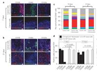 Наночастицы железа — новое оружие против рака