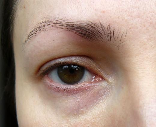 Почему у человека темные круги под глазами 17