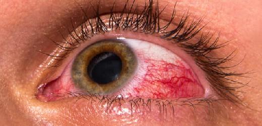 5 по 10 березня – Всесвітній тиждень боротьби з глаукомою