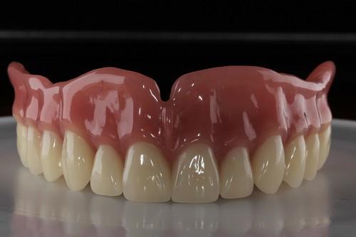 фото зубные протезы