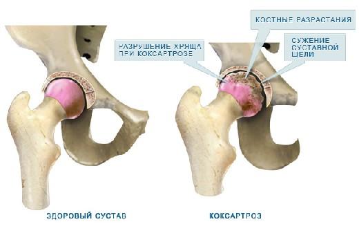 Дегенеративно дистрофические изменения в тазобедренном суставе неразработаннфй сустав